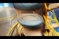 Vista del interior de un disco intervertebral. Imagen Health-spine